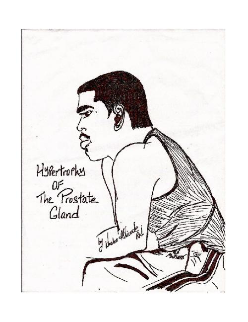 Hypertrophy of the Prostate Gland.