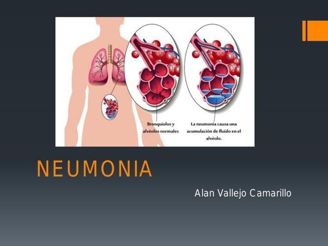 neumonia prueba