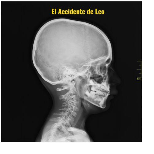 El Accidente de Leo
