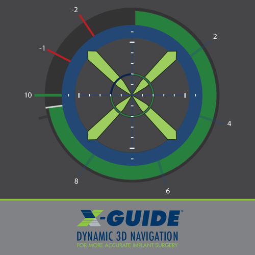 X-Guide Dynamic 3D Navigation Brochure_P009100