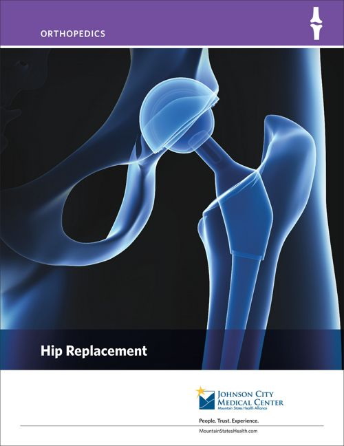 Hip Replacement Patient Education Booklet_091216