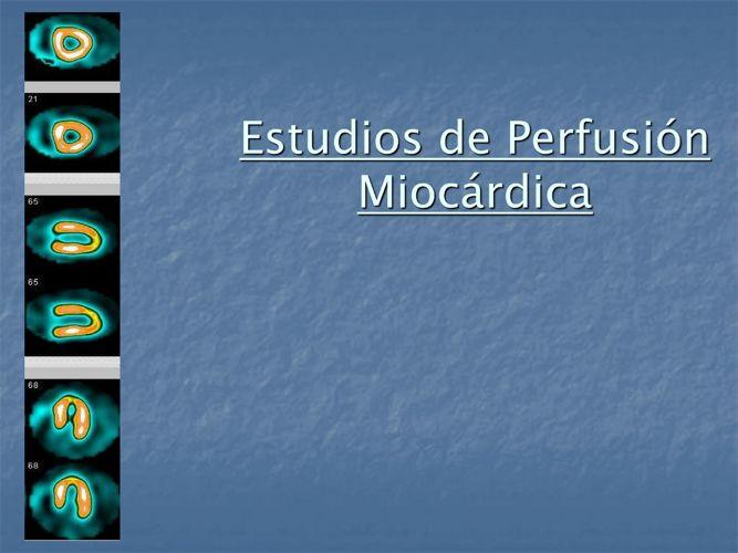 PERFUSION MIOCARDICA IDIME (1)