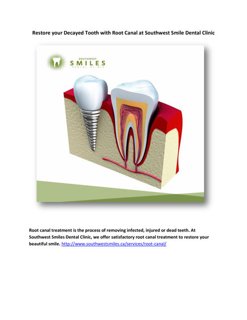 Restore your Decayed Tooth with Root Canal