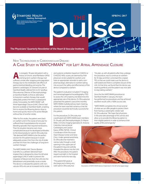 The Pulse - Spring 2017