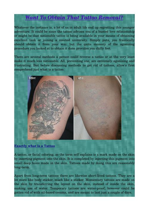 Want To Obtain That Tattoo Removal?
