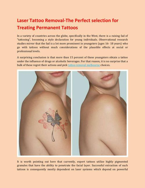 Laser Tattoo Removal-The Perfect selection for Treating Permanen