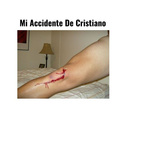 El accidente de cristiano