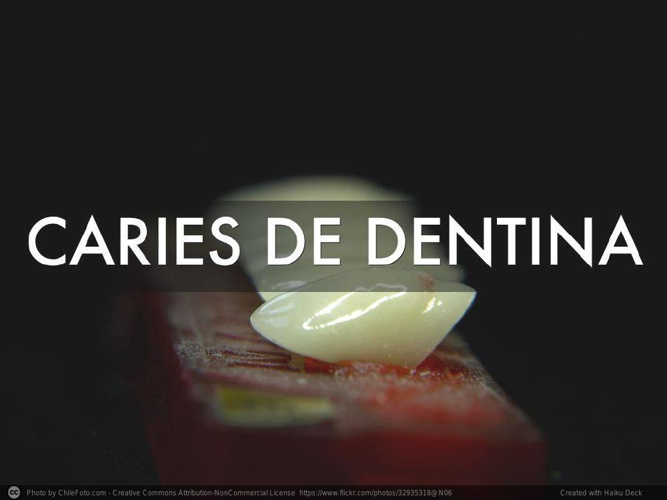 CARIES-DE-DENTINA