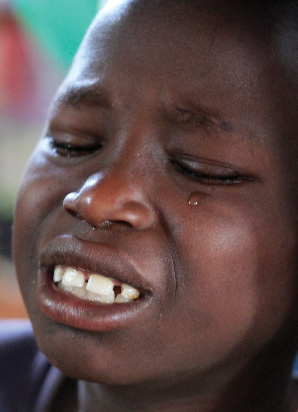 Adrian, an orphan who lives with his grandmother, had more than 58 jiggers removed from his feet at a Sole Hope clinic.