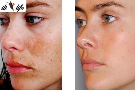 une peau de visage parfaite avec un soin de visage anti t ches par peeling laser carbone 299. Black Bedroom Furniture Sets. Home Design Ideas