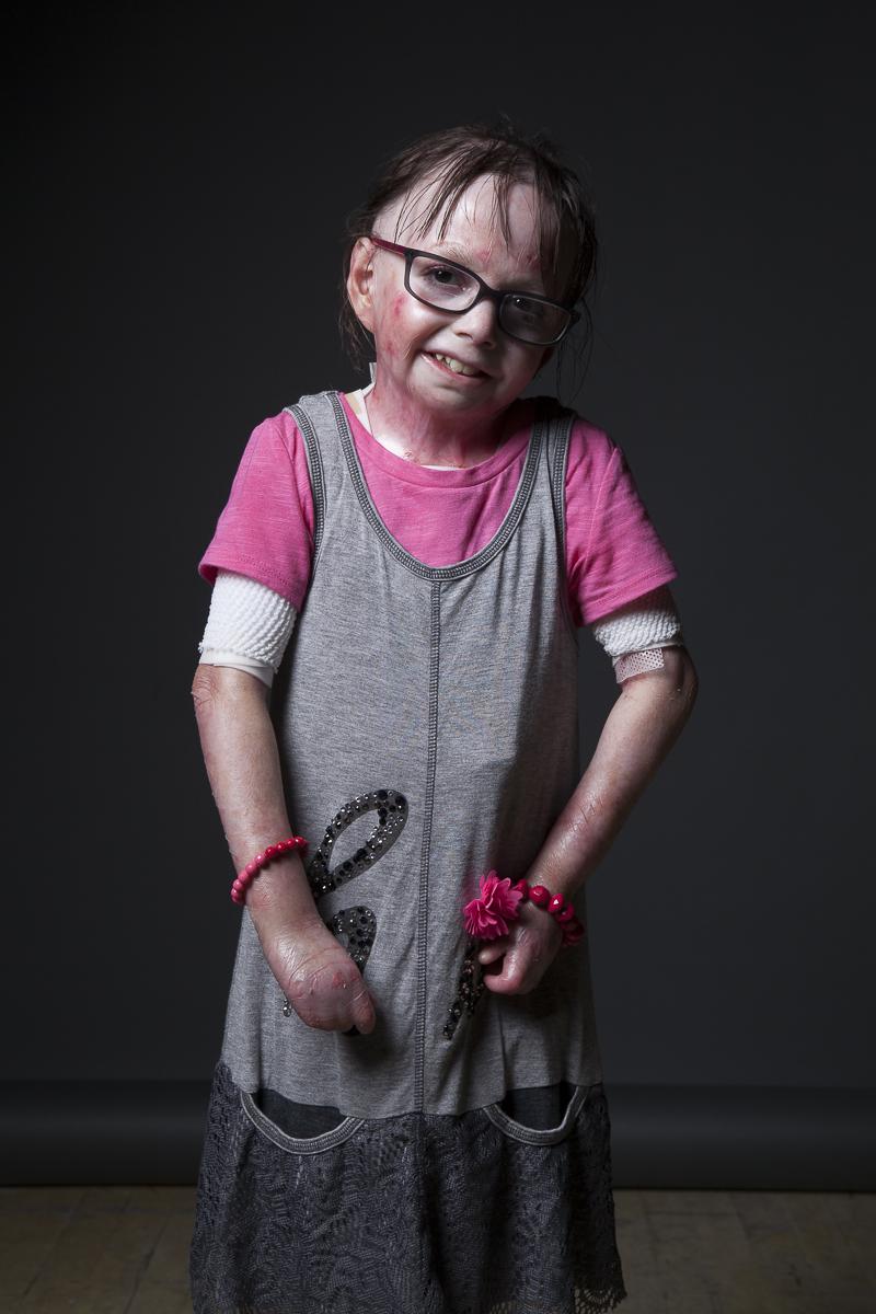 Un niño con epidermólisis bullosa.
