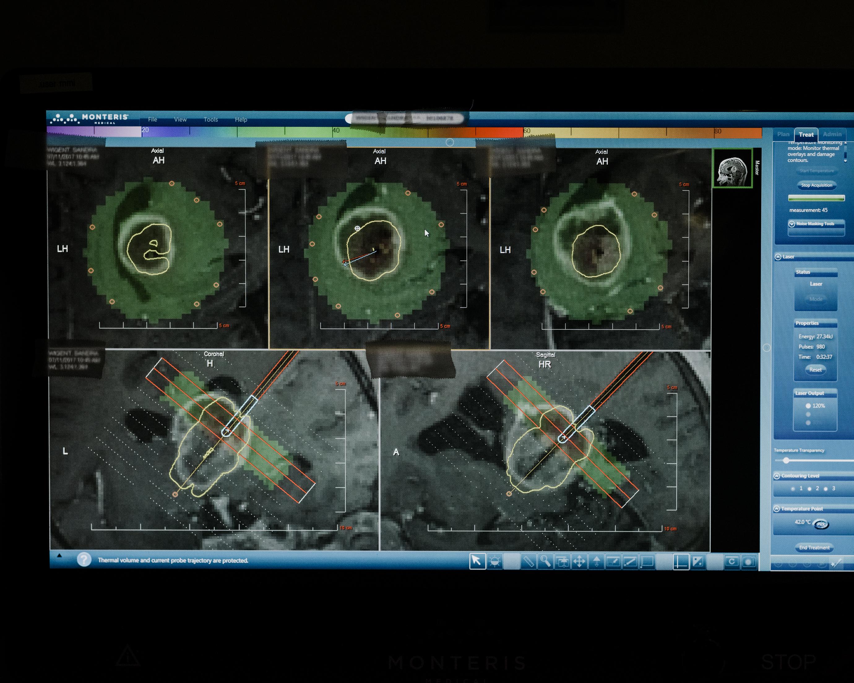 En esta pantalla de la computadora de la sala de control, el láser se monitorea en tiempo real.