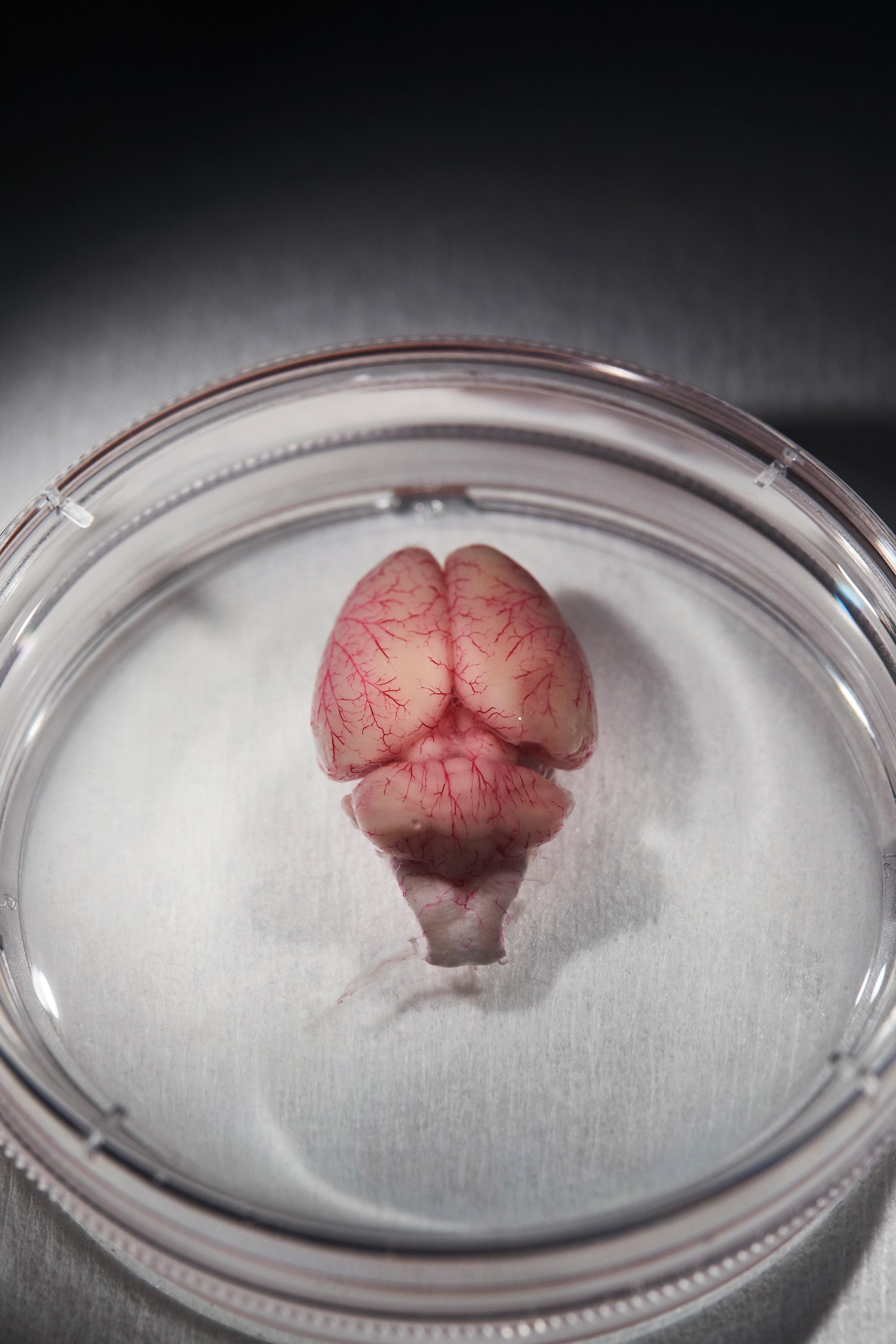 Un cerebro de rata en un plato y una representación de dos neuronas con dendritas espinosas.