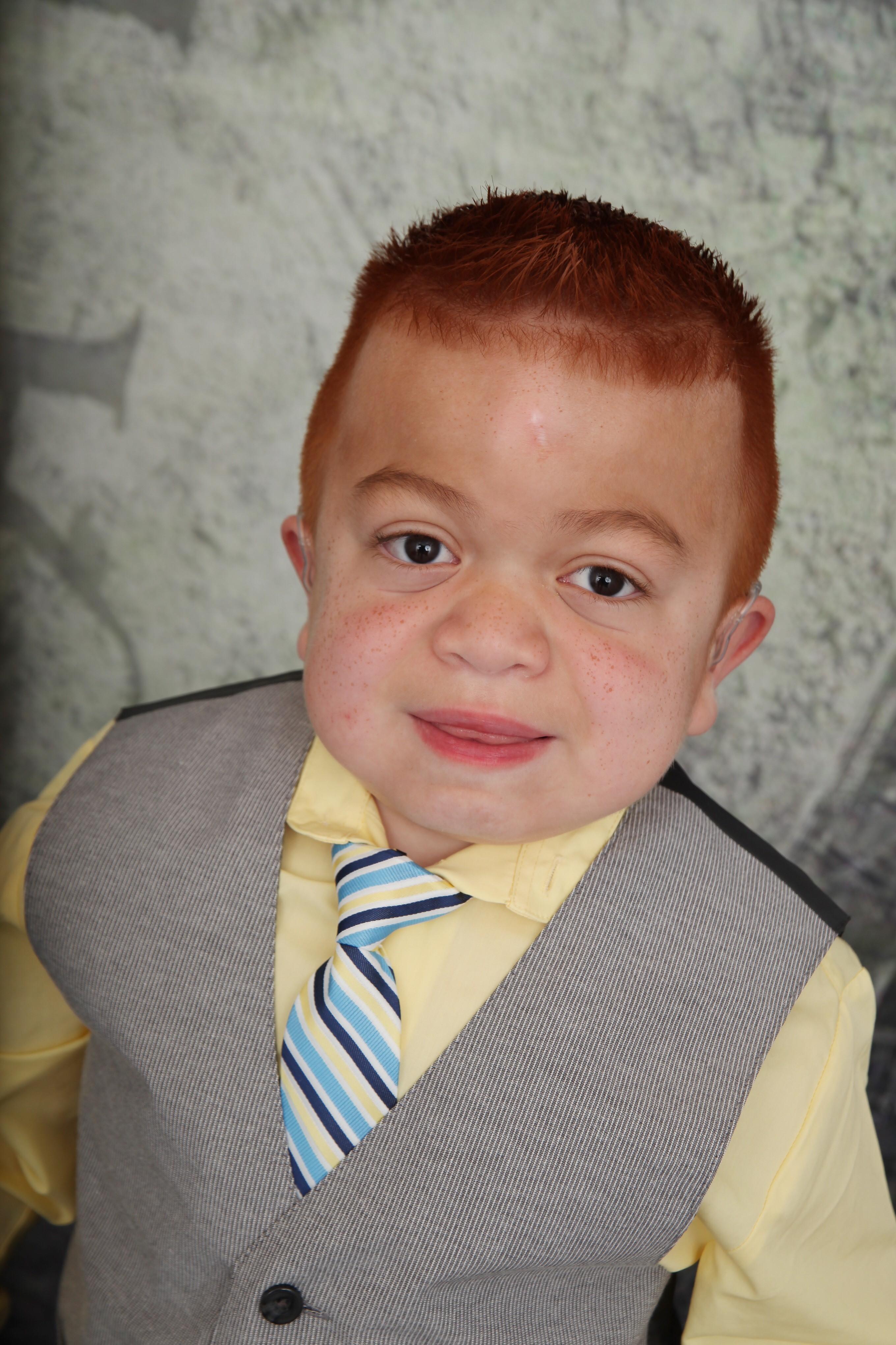 Dominic Henriquez, de 7 años, tiene el síndrome de Hunter, una rara enfermedad que afecta a muchas partes diferentes del cuerpo.