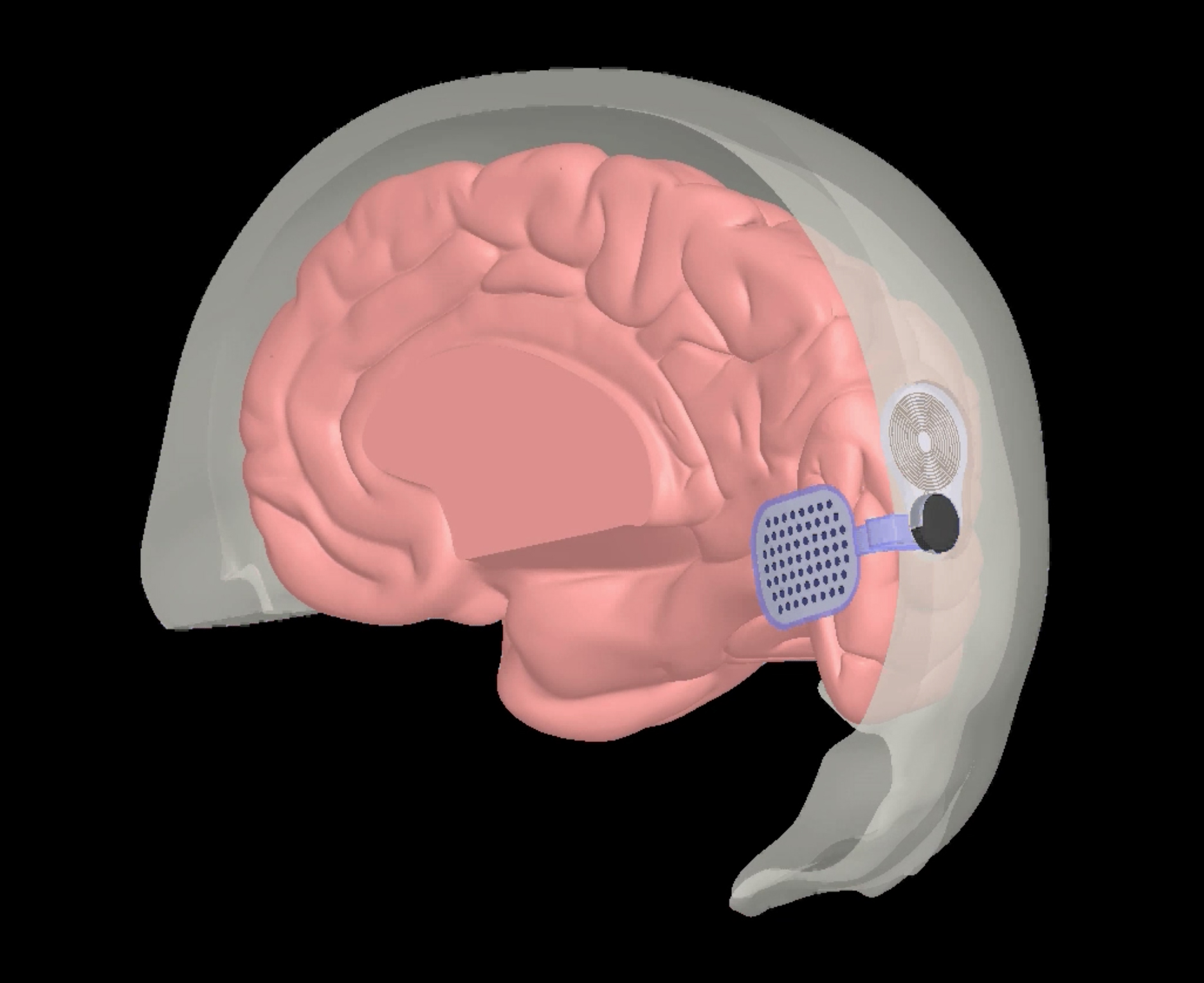Una representación del dispositivo Orion de Second Sight, un implante cerebral que utiliza la mayor parte de la tecnología del dispositivo existente de la compañía, el Argus II.