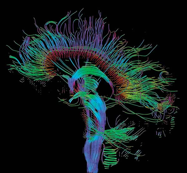 time travel through the brain mit technology review slideshow today scientists can safely examine these connections in a living human brain using a variation of magnetic resonance imaging mri called