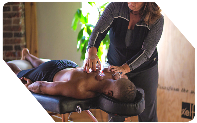 RMT Cupping Therapy