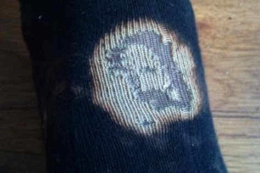 A 'holy' relic? Oswestry man, James Henderson, found the face of Jesus on his sock