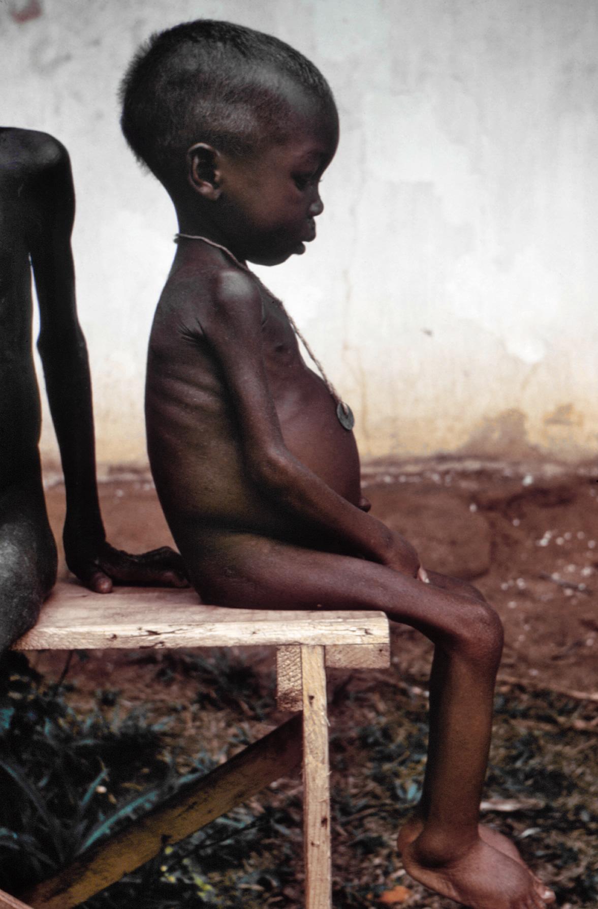 Starved girl, Nigeria famine