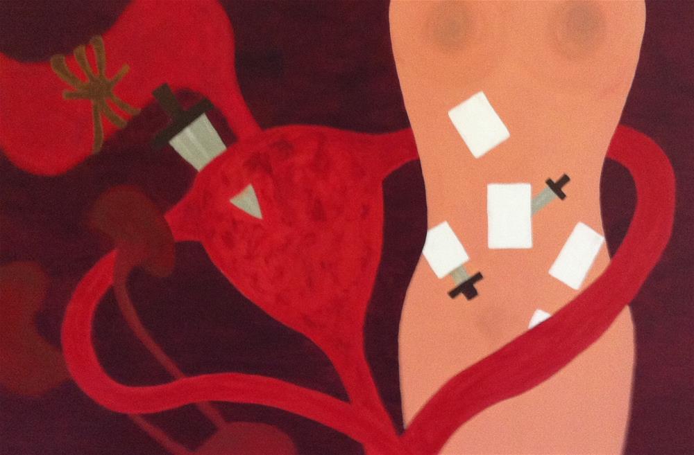 """""""Body Beseiged"""" original fine art by Madeleine Hoffmeister"""