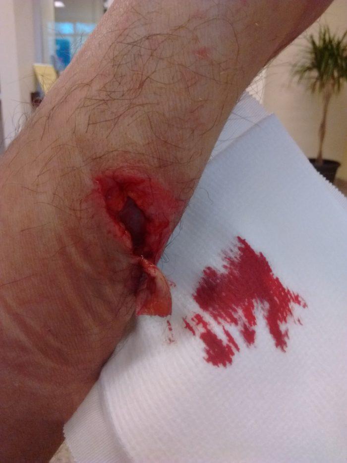 Injury 3