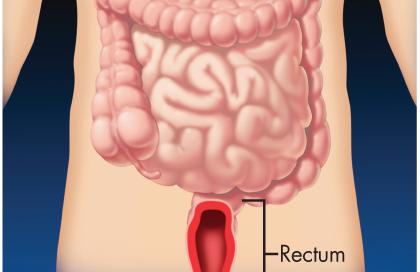 Rectum Ulcerative Proctitis Flaming Gut