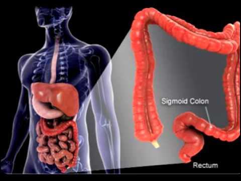 ulcerative colitis cure colon exploded image