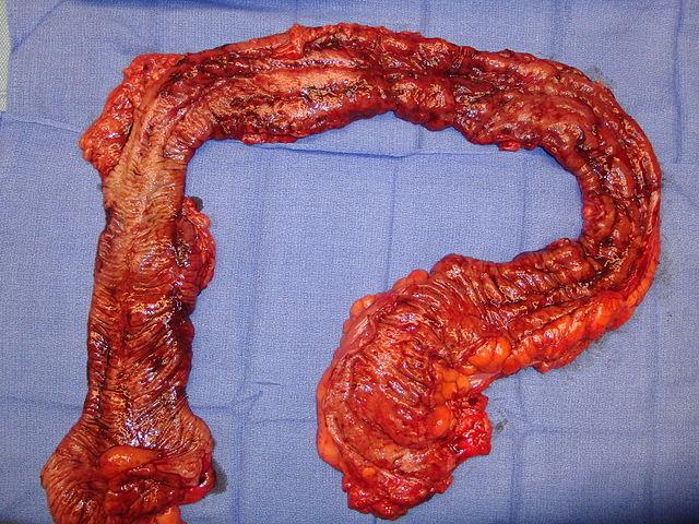 Ulcerative Colitis Cure Pancolitis Picture