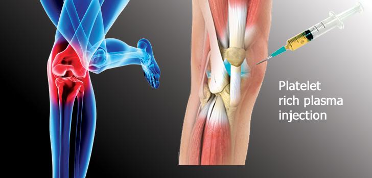Orthopedics in Florida – A trend toward less surgery