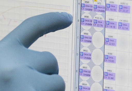 Urine test could simplify Zika virus detection