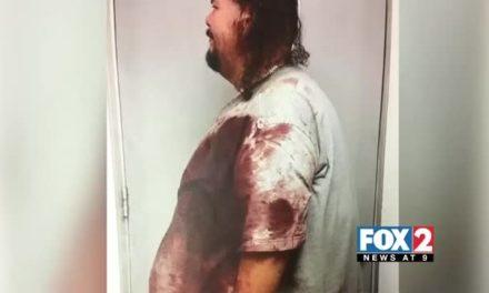 Santa Rosa Woman Stabbed 17 Times