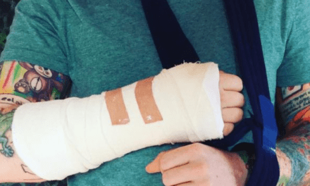 Ed Sheeran Broke His Arm, and His Upcoming Tour Dates Are in Doubt