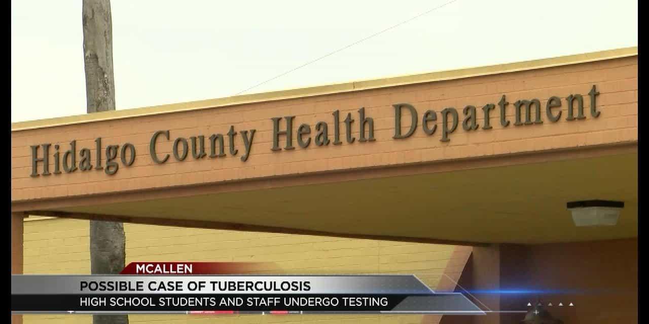 High School Tuberculosis Case in McAllen