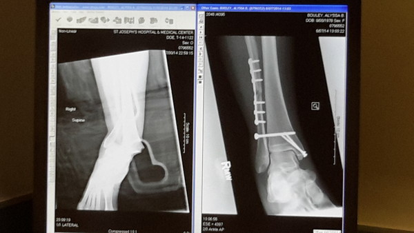Pre & Post Op Xrays - same foot same direction!