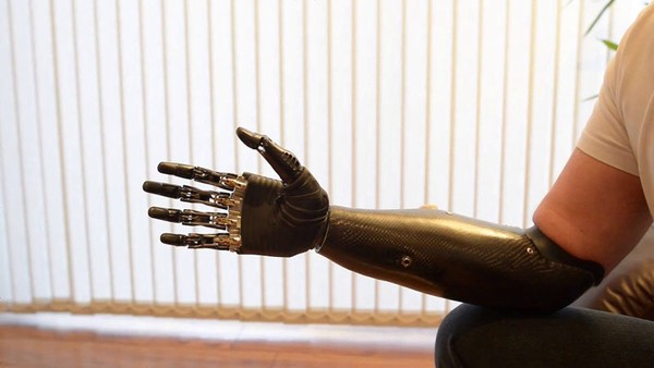 hand and arm prothesis Prosthetic arm and hand team – names first students may not use their fingers inside the prothesis to make the prothesis fingers pick up the cup.