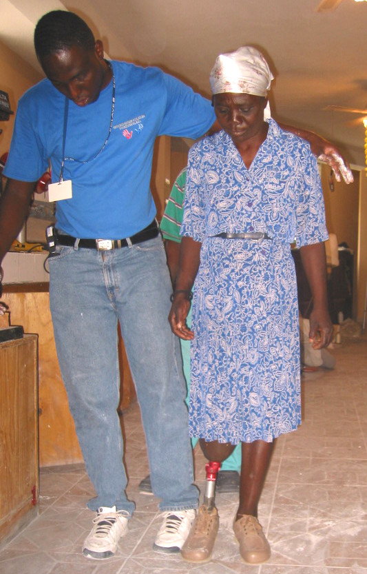 Prosthetics and rehab at Healing Hands for Haiti, Port au Prince