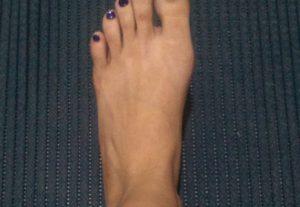 Pack de fotos do meu pé