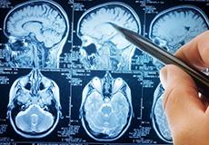 Brain scan x ray