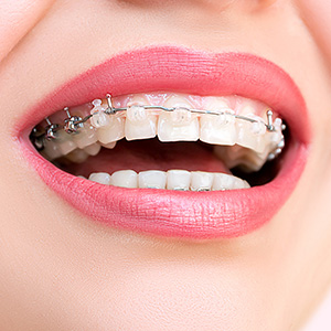 women smiling with porcelain braces