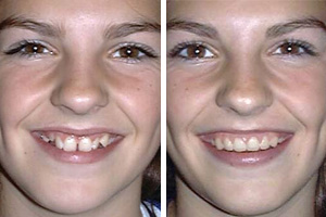 crooked teeth before, straight teeth after