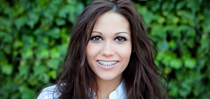 women smiling with braces on