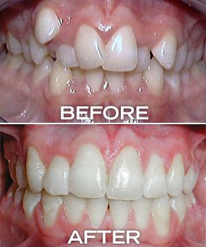 wonky teeth before, straight teeth after