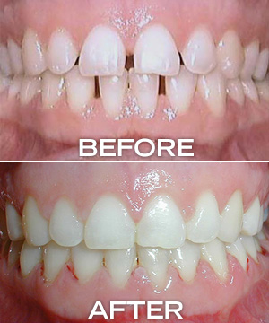 gapped teach before, straight teeth after