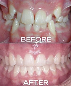 janky teeth before, straight teeth after
