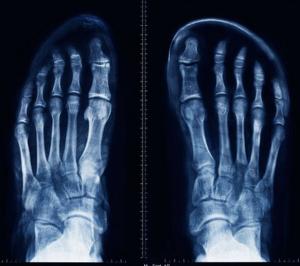 toe box comparison