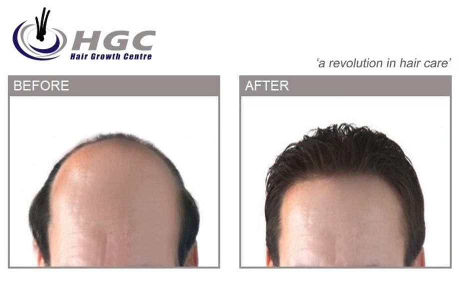 HAIR GROWTH CENTRE