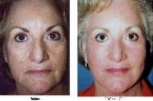 Skin Rejuvenation - Laser Before/After
