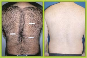 Hair Removal Before/After