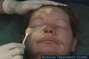 Rosacea Therapy