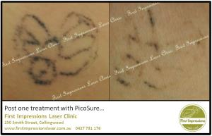 Tattoo removal now safe and effective!